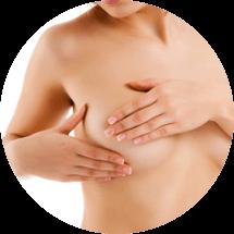 Подтяжка груди, мастопексия